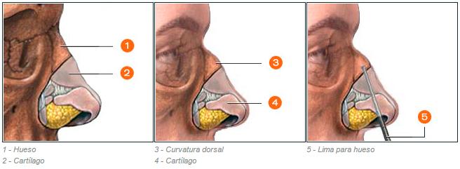 7rinoplastiafoto
